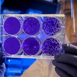 Las bajas por coronavirus se consideran enfermedad laboral